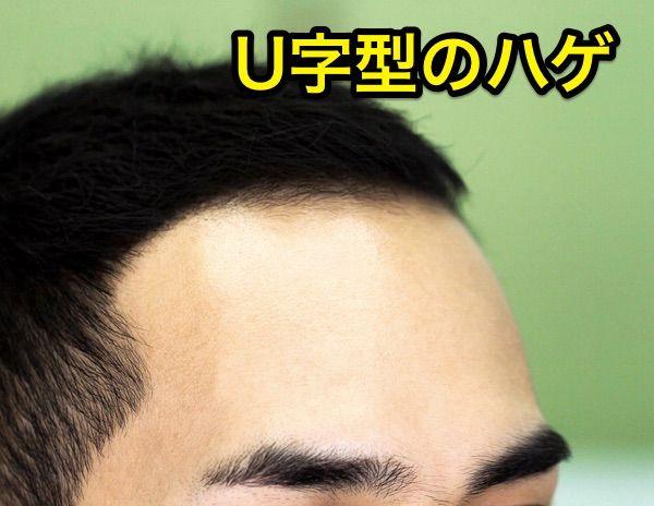 u字型ハゲ