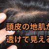 頭皮の地肌が透けて見えるなら薄毛の危険性あり!対策方法は?