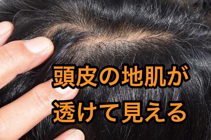 頭皮の地肌が透ける