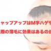 チャップアップの成分はM字ハゲ・生え際の薄毛に効果があるのか検証