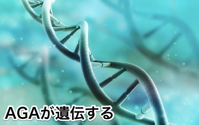 agaの原因は遺伝