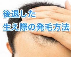 生え際の発毛方法