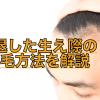 後退した生え際(前頭部)を発毛する4つの方法!おでこのハゲは治る?