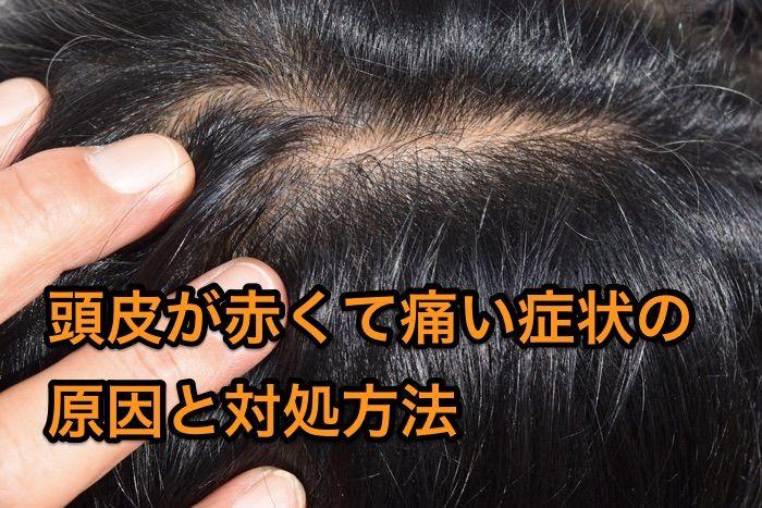 頭皮の痛み赤み