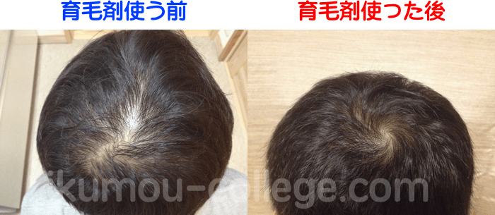 before_after02-compressor