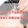 チャップアップは前頭部・前髪に効果あり?おでこが広がる前に改善