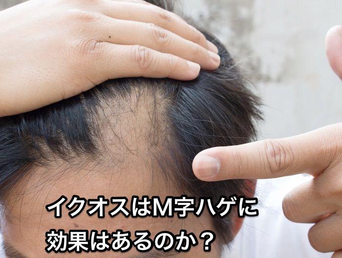 M字はげ_イクオス
