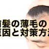 前髪の薄毛・抜け毛の原因と対策方法を解説!ハゲる前に改善